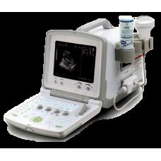 УЗИ сканер ACUVISTA (RAY SYSTEMS) АсuVista RS880f переносной купить