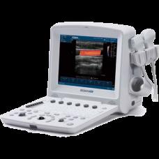 Портативный УЗИ сканер EDAN U50 купить